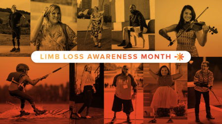 Limb Loss and Limb Difference: Facts, Statistics, & Resources